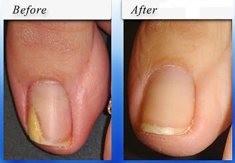 How To Treat Nail Fungus Under Acrylic Nails Fingernail Fungus Splitting Toenail Fungus Removal Toenail Fungus Cure Foot Fungus Treatment