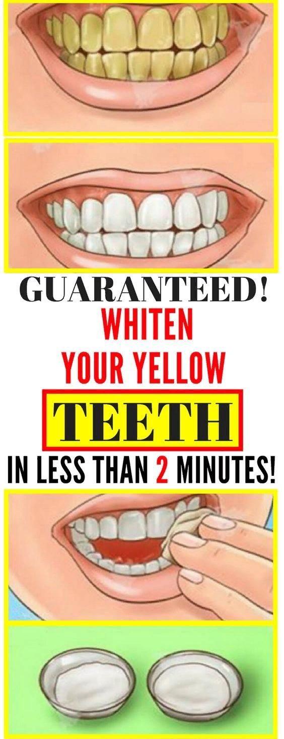 GO FOR IT   Garantiert! Bleichen Sie Ihre gelben Zähne in weniger als 2 Minuten!   – Health and Fitness