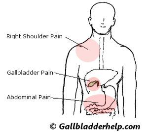 gallbladder-problems. symptoms sometimes thought of as a heart, Human Body