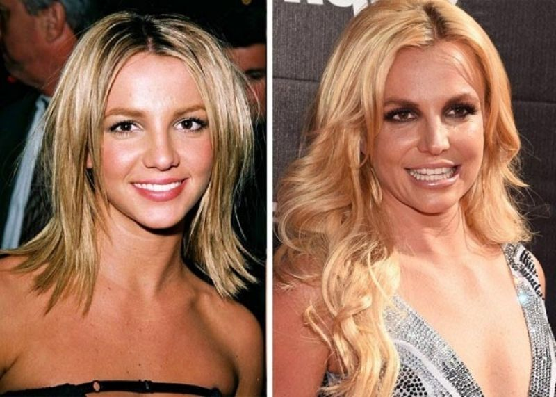 Pin On Plastic Surgery Before After