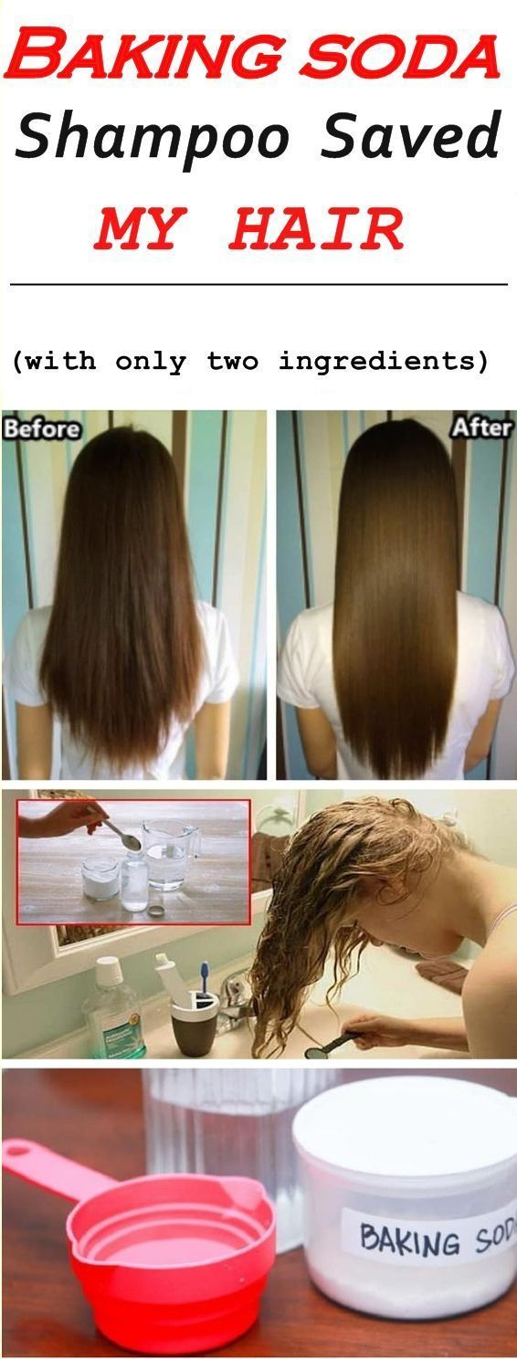 This Baking Soda Shampoo Saved My Hair With Images Baking Soda Shampoo Baking Soda For Hair Hair Care Tips