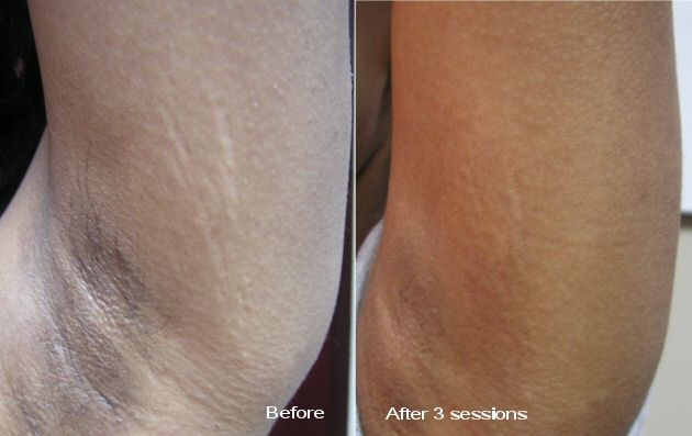 How Much Does Laser Stretch Mark Removal Cost  How Coster -2891