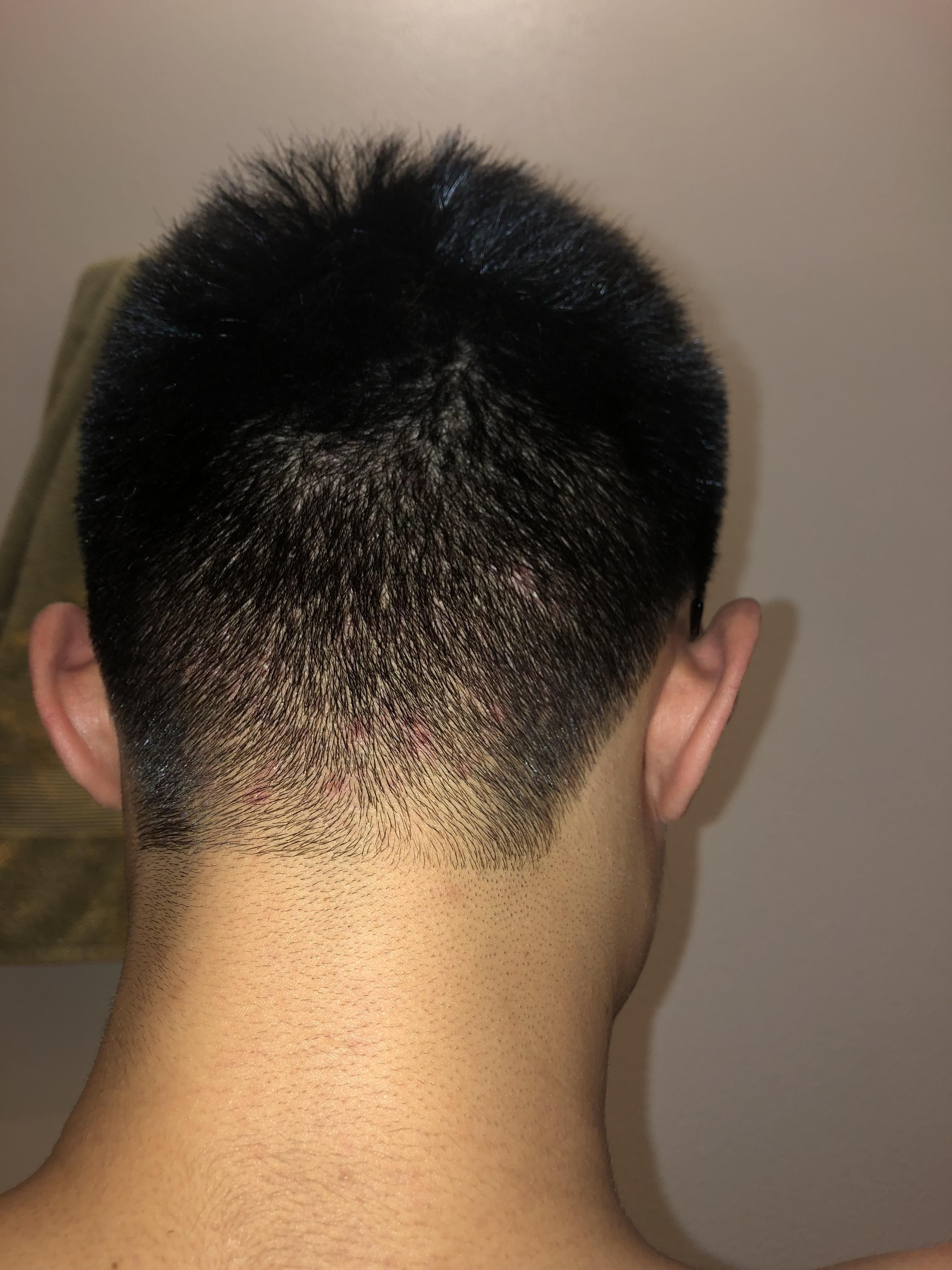 Acne] Red spots/acne on back of neck/scalp  What can I use to get