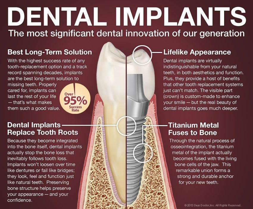 Dental Implants Explained From Doctor Inc