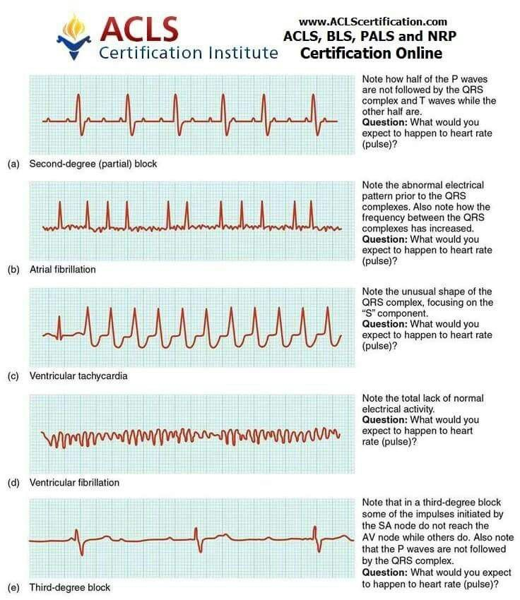 cardiac heart ekg strip