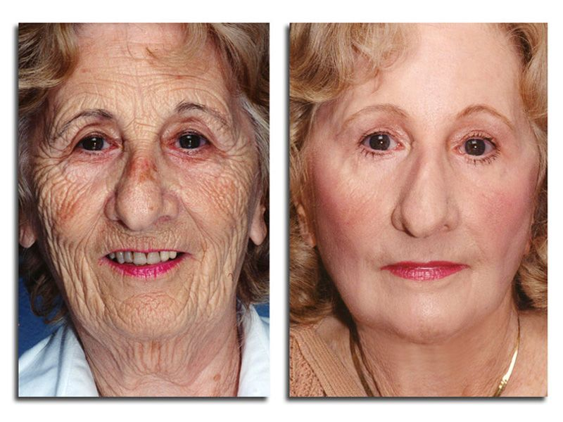 Tremetski Com Photo Rejuvenation Skin Treatment Quick