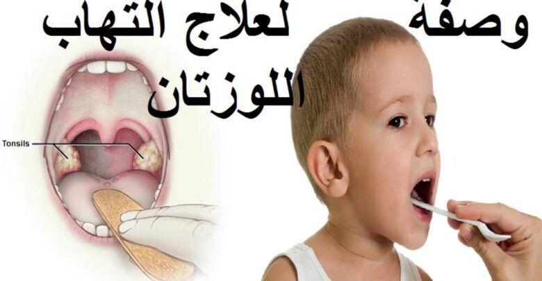 ما هو علاج التهاب اللوزتين وأعراضها وكيفية الوقاية منها Sleep Eye Mask Personal Care Person