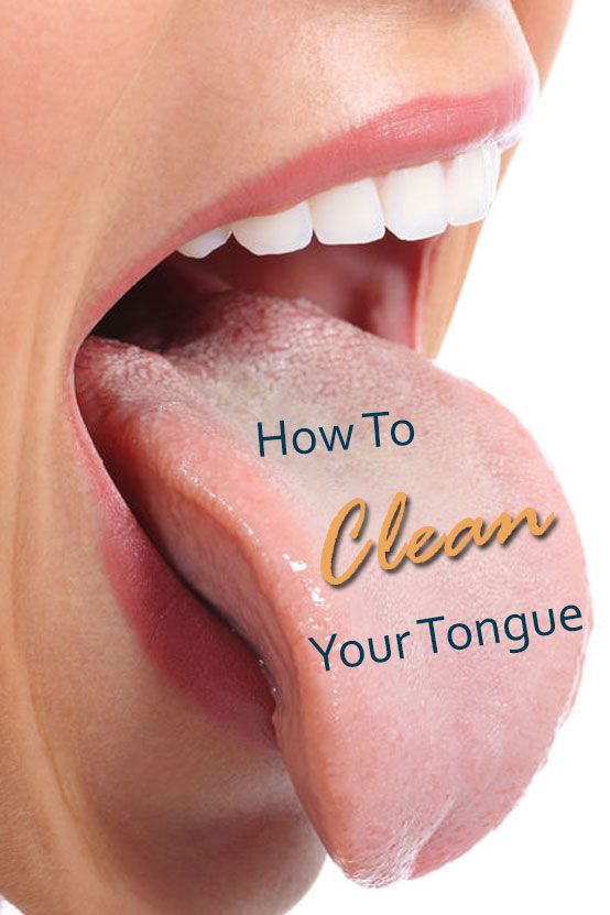 A Clean Tongue Is Important To Your Dental Health Why The Bacteria That Causes Bad Breath Can Also Be Creating Pl Bad Breath Gum Disease Causes Of Bad Breath