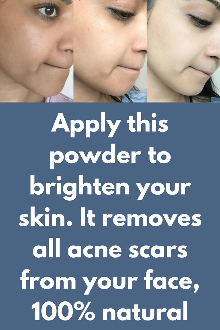 months challenge Apply this powder to brighten your skin It