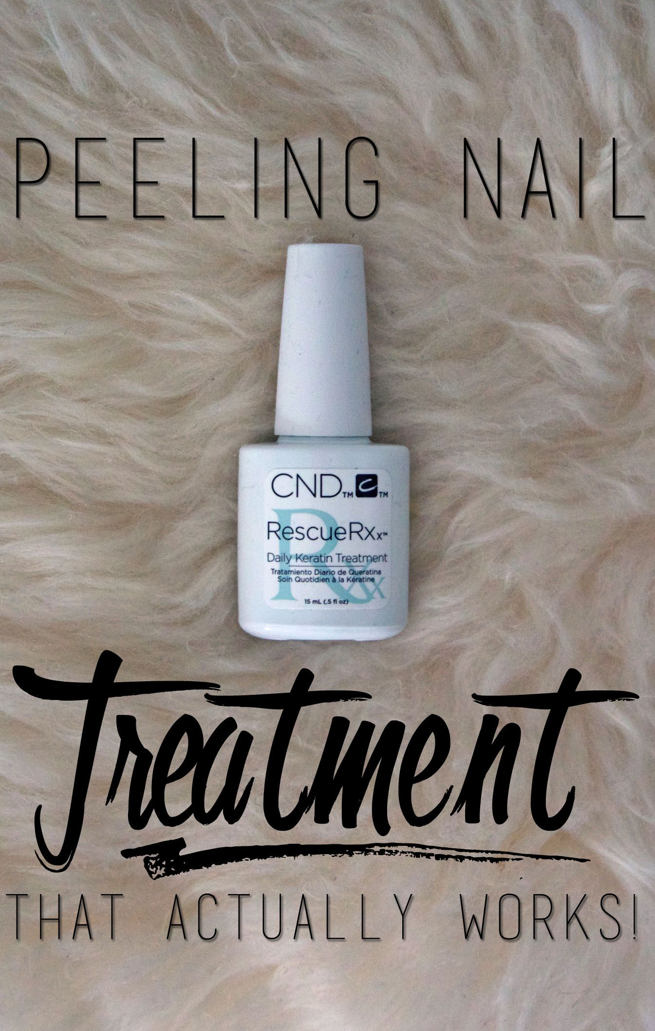 Peeling Nails: A Treatment That Actually Works!? | Peeling nails ...