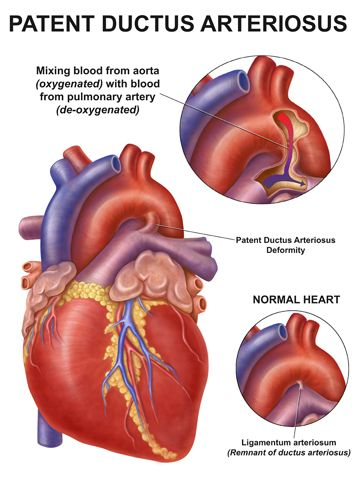 Pin By Nonas Arc On Patent Ductus Arteriosus Pda Pinterest