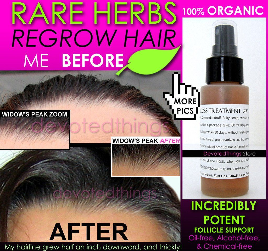 Organic hair growth treatment for natural hair care with natural