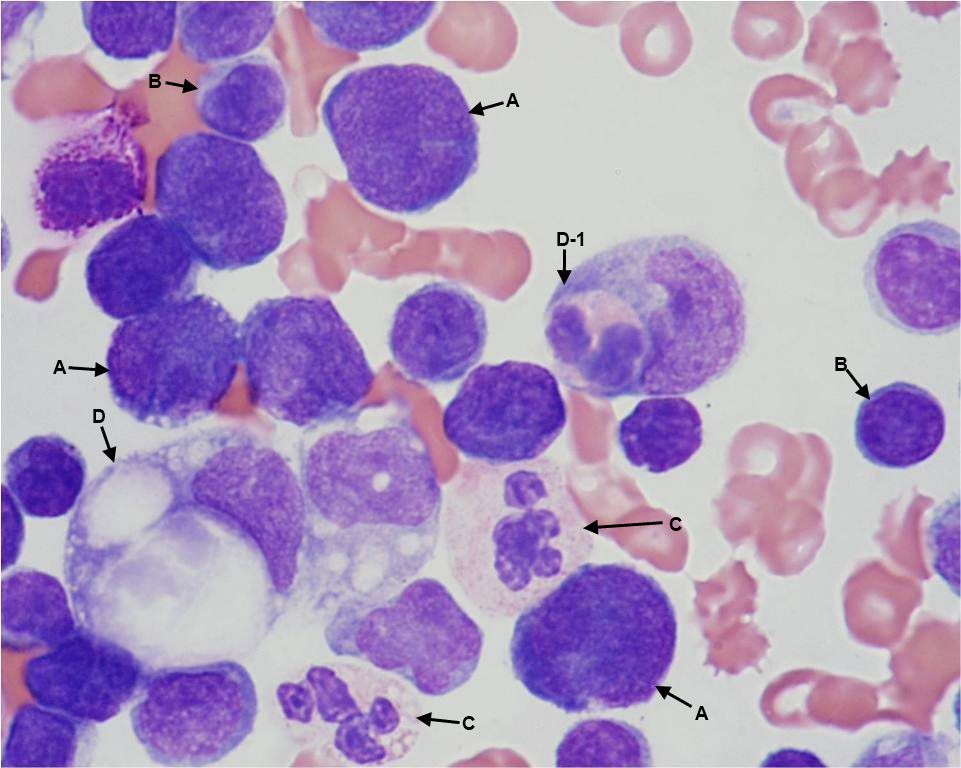 Pleural fluid a. lymphoma cells b. lymphocytes c ...