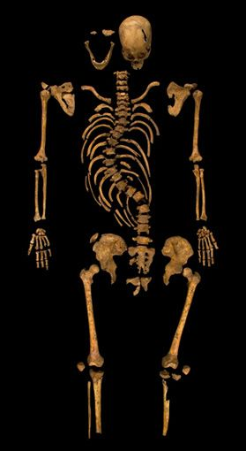 Richard III's Skeleton: Whole skeleton showing curvature of spine at 10th and 11th thoracic vertebrae... scoliosis. This would not have given him the hump and horrid deformities of Shakespeare but his shoulder on one side would have been higher.