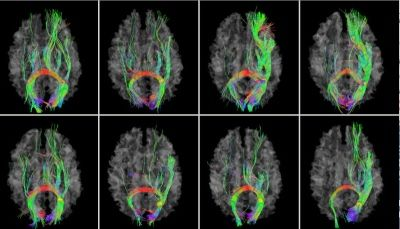 GPS for the Brain: New Brain Map Developed  -  Pinned by @PediaStaff – Please Visit http://ht.ly/63sNt for all our pediatric therapy pins