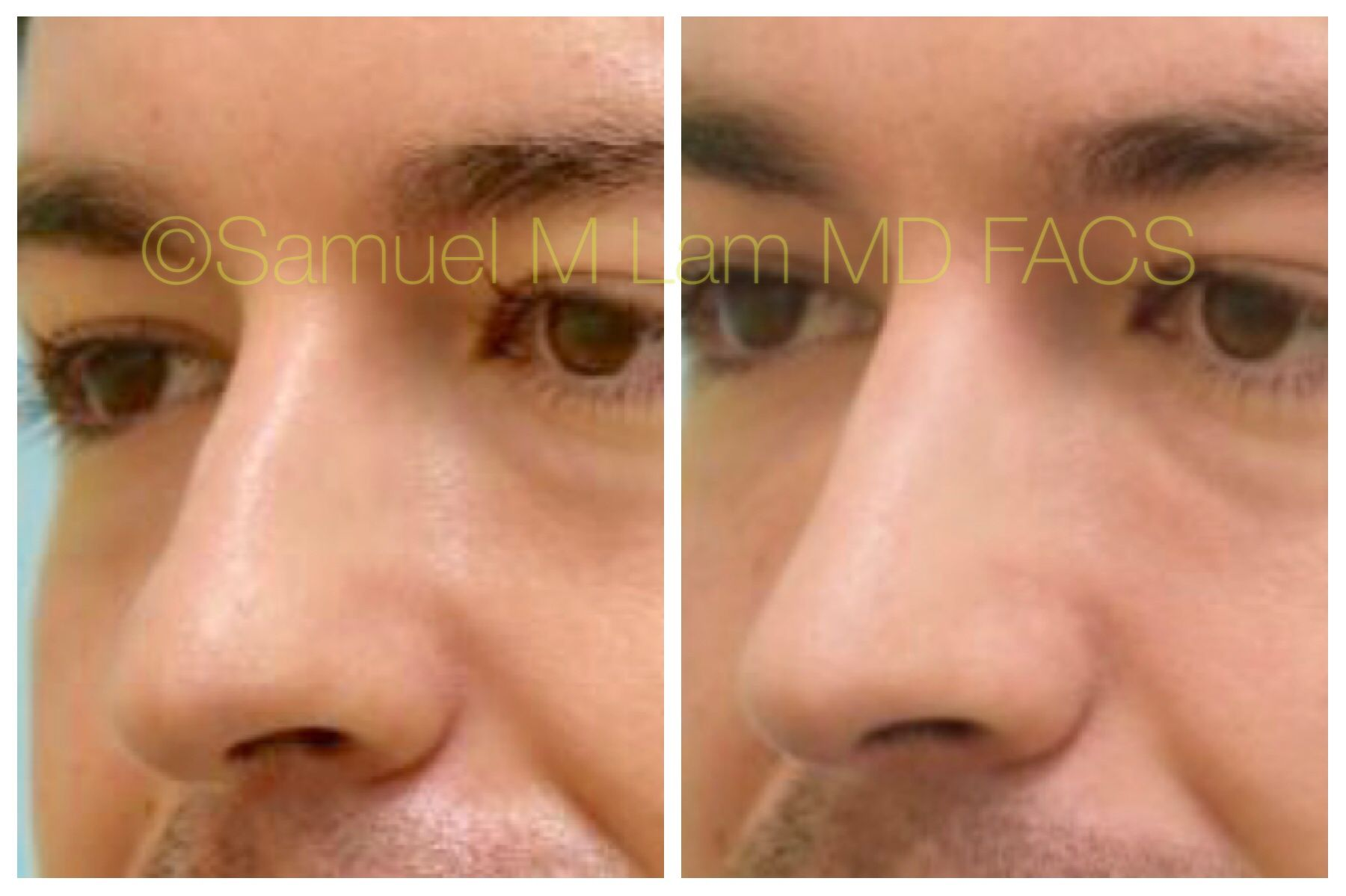 This gentleman is shown before and after cosmetic rhinoplasty
