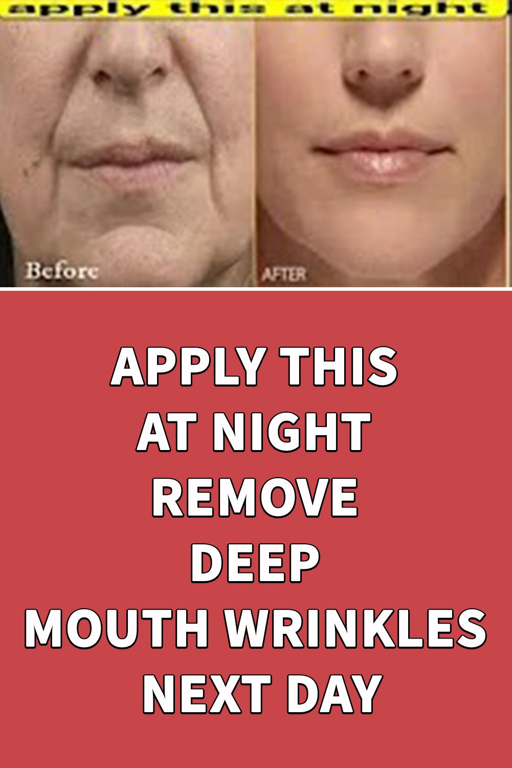 APPLY THIS AT NIGHT REMOVE DEEP MOUTH WRINKLES NEXT DAY in