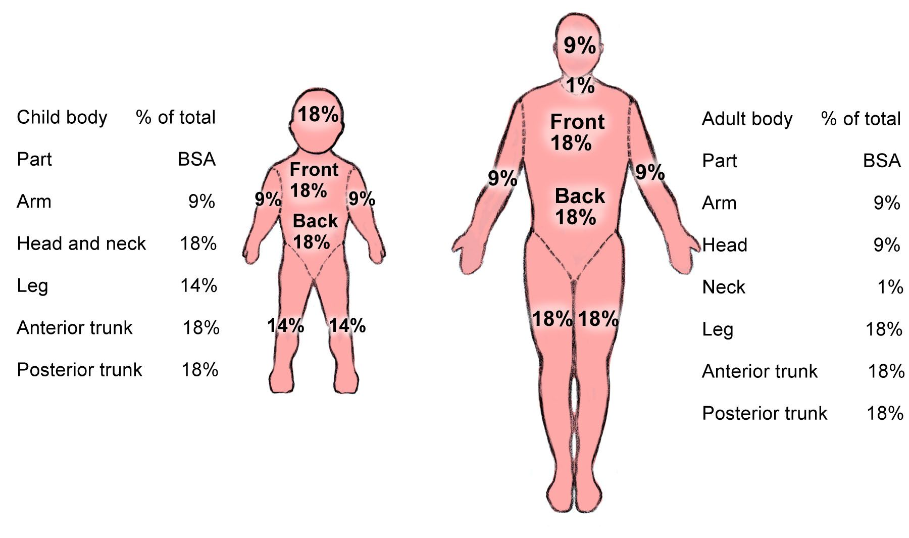 Rule of 9 for burn victims | medical nerd | Pinterest | Physical ...