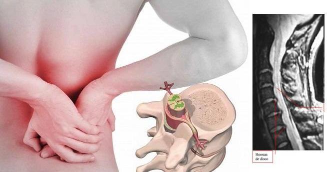 Sobre la causa más frecuente de dolor de espalda...