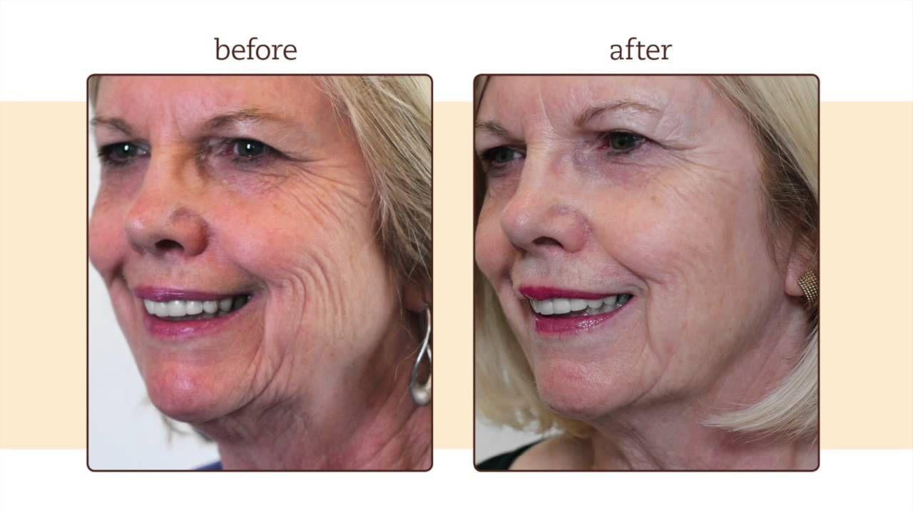 Nancy on touchstones super serum youtube skin care