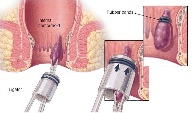Internal Hemorrhoid Surgery Hemorrhoids Treatment Cure For Hemorrhoids Hemorrhoid Remedies