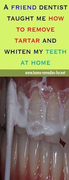 A friend #dentist taught me how to remove #tartar and #whiten my #teeth at home, #remedy #remedies #homemade #beauty #viral #beautytips #wellness #OralHealthCare #DentalHealthCare