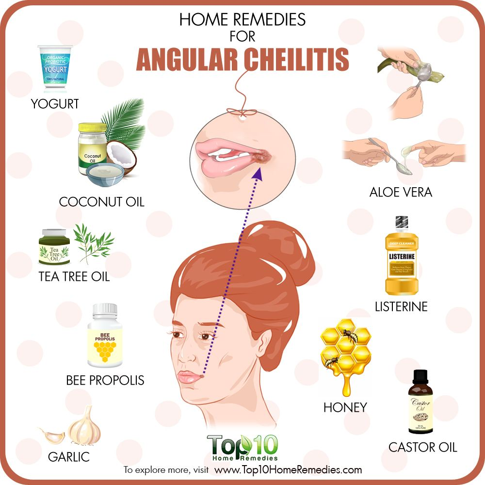 Home Remedies For Angular Cheilitis Cracked Mouth Corners Top 10 Home Remedies Cracked Corners Of Mouth Chapped Lips Remedy Remedies