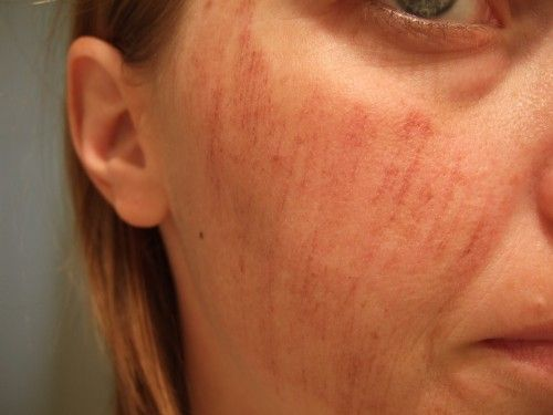 How To Get Rid Of Red Bruises On Face