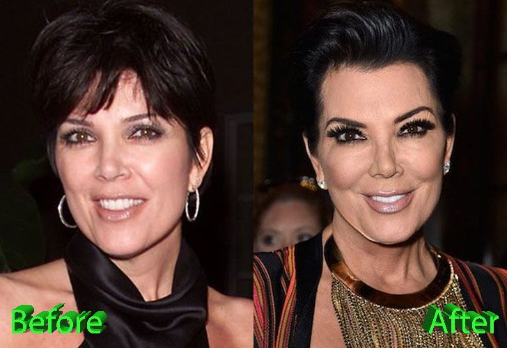 Plastic Surgery Before And After: Gaddafi Plastic Surgery