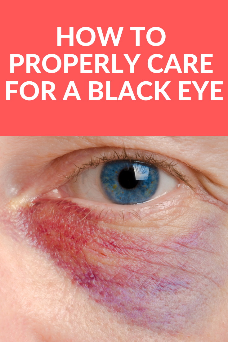 3b333436f4c0b0cdb7a5cbbb47044e4a - How To Get Rid Of A Black Eye Really Fast