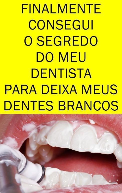 Whitemax Como Clarear Os Dentes Em 5 Minutos Remedios Caseiros