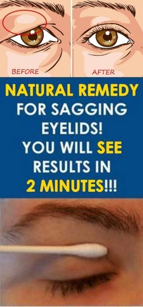 NATURAL REMEDY FOR SAGGING EYELIDS YOU WILL SEE RESULTS IN 2 MINUTES!!!
