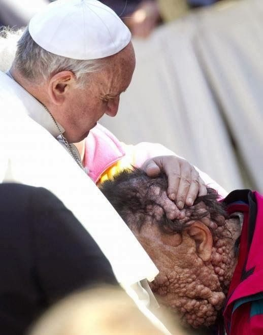 SHARE - POPE FRANCIS EMBRACES DISFIGURED MAN AND BLESSES HIM