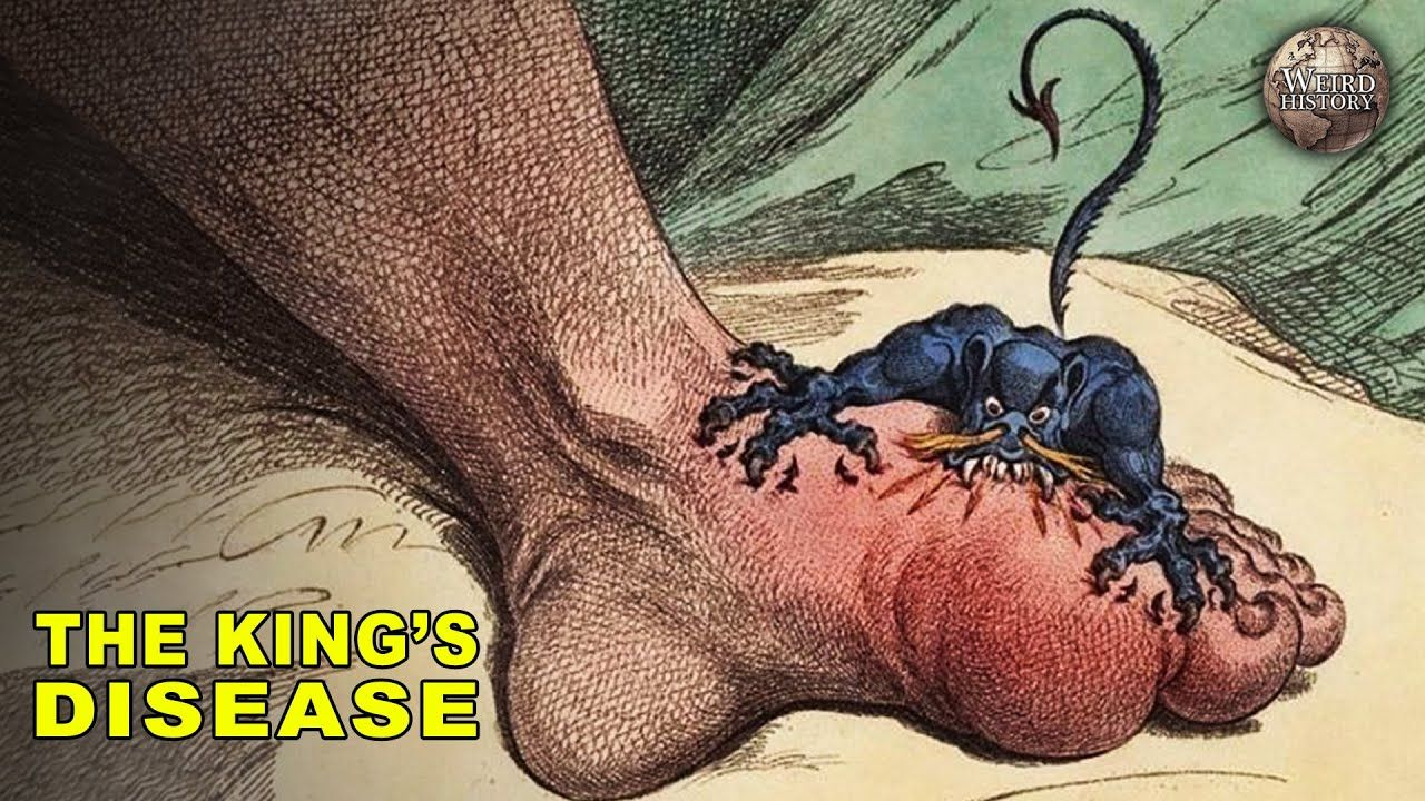 The History of Gout | The Disease of Kings | Gout relief ...