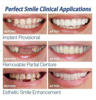 Correccion Oral De Los Dientes Para Dientes Mal Darle Perfecta Sonrisa Carillas Oral Cuidado For Sale Online Cosmetic Teeth Veneers Teeth Perfect Smile Teeth