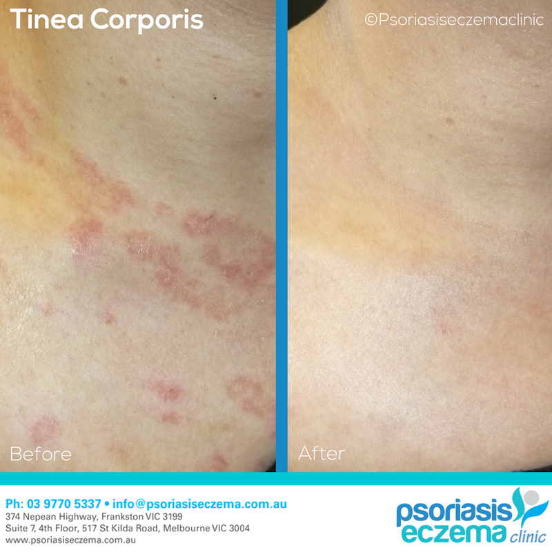 Tinea Corporis Before and After Results! Photos taken 2