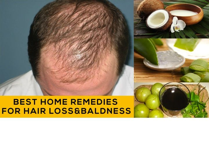 How To Away Rid Of Ringlets Fall Home Remedies