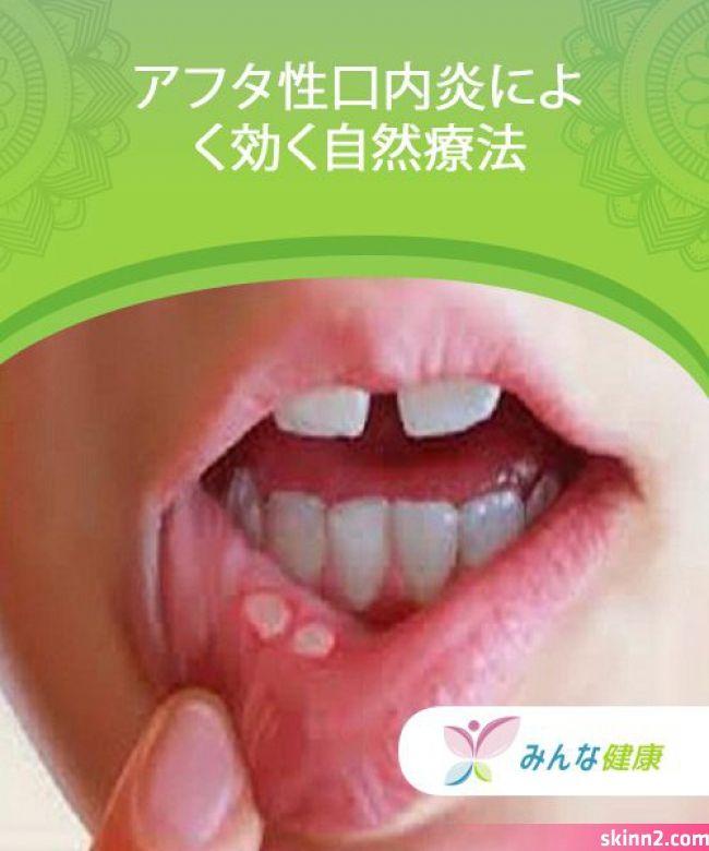 アフタ性口内炎によく効く自然療法 — みんな健康 痛いし違和感があり ...