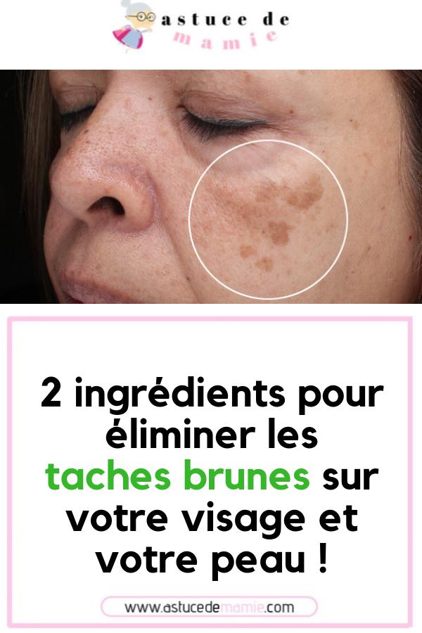 nouveau design obtenir pas cher professionnel 2 ingrédients pour éliminer les taches brunes sur votre ...