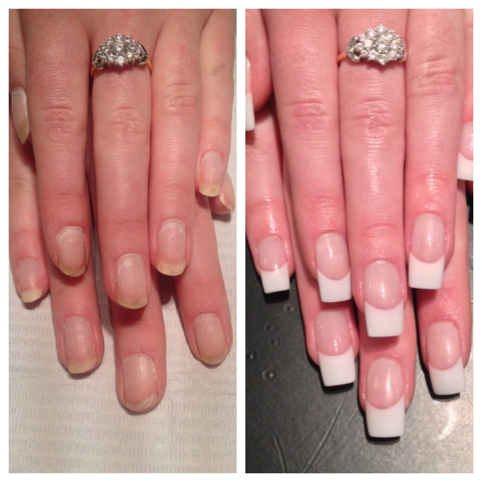 Acrylic nails - pink and white powder. No white tips ;) | Hair and ...