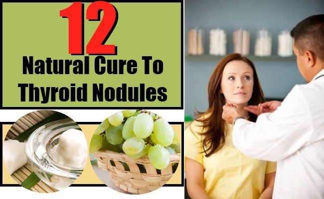 12 Natural Cures For Thyroid Nodules #naturalcures