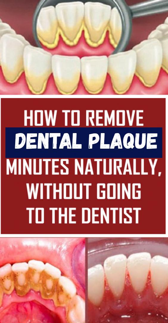 Zahnbelag ist die Ansammlung von Speiseresten sowohl im Inneren als auch im inneren Te …   – A-Z about Health