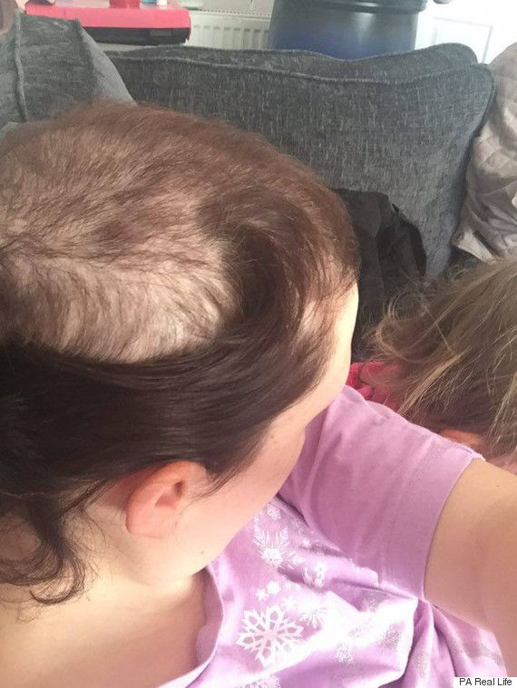 Woman Pulls Out Own Hair Due To Rare Condition Trichotillomania