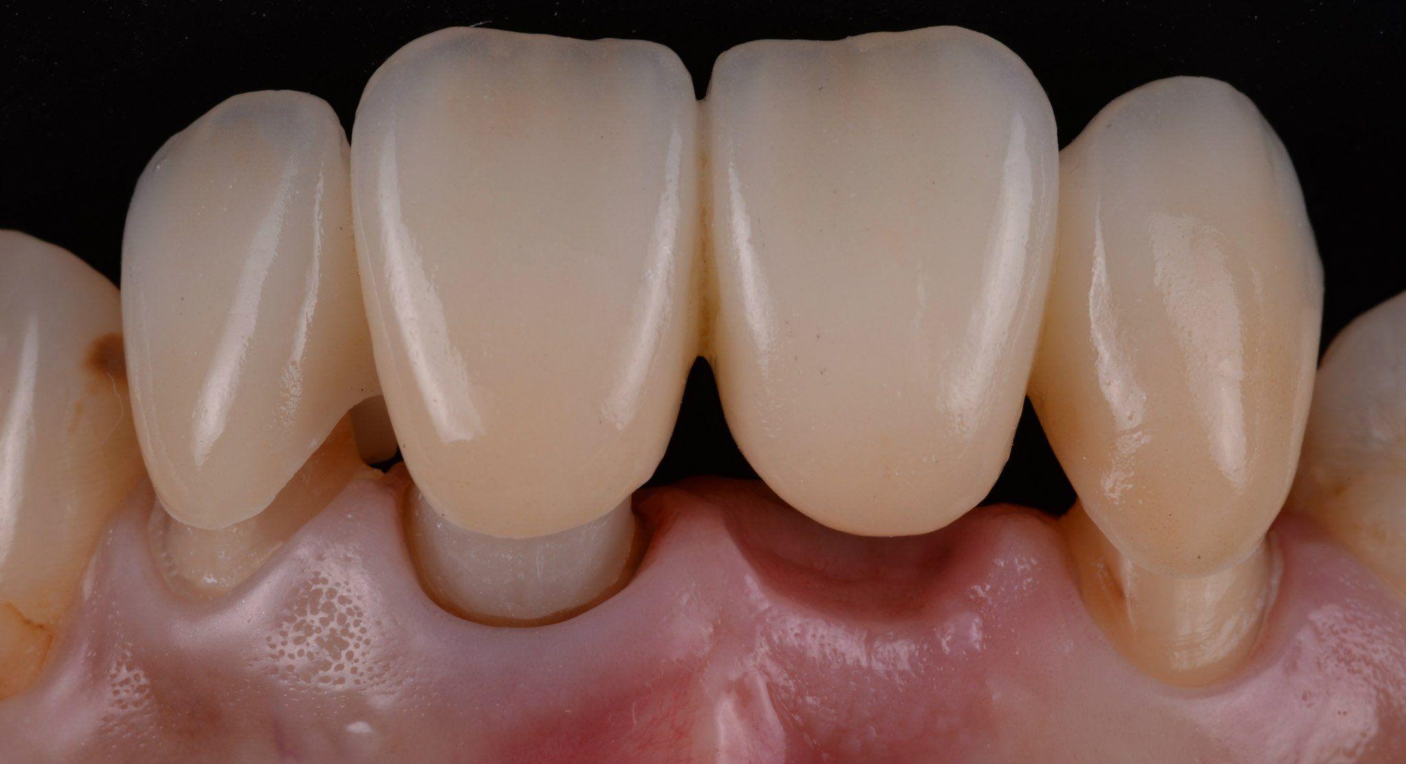 Порцеланов мост на проба в устата преди циментиране | Dental ...