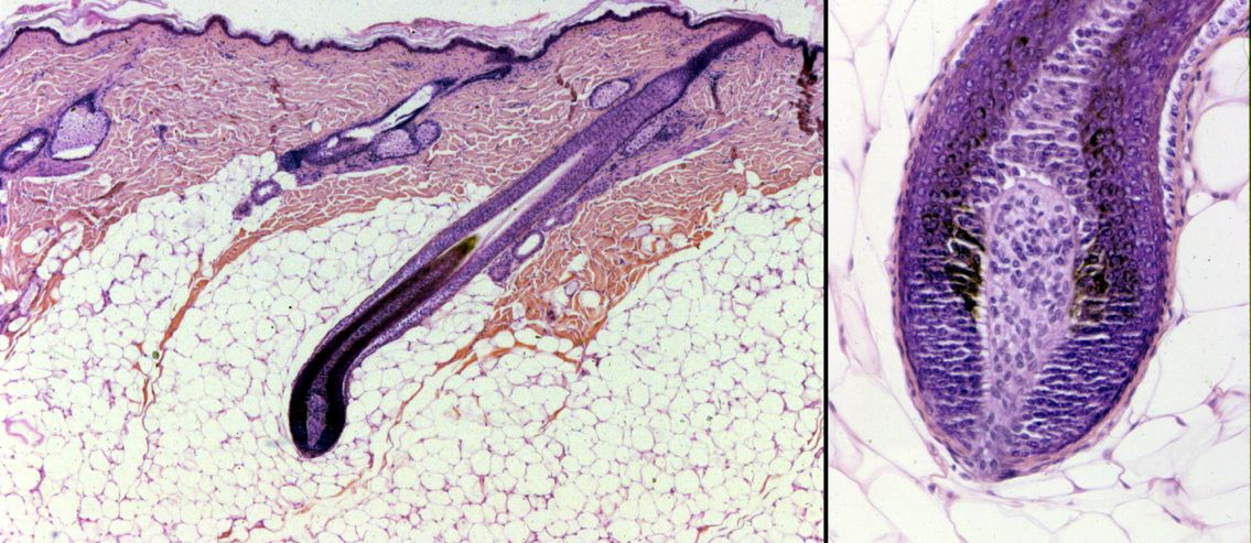 Hair Bulb Under Microscope hair bulb contains liv...