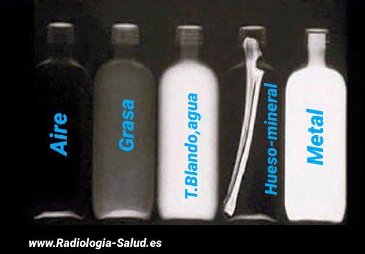Las 5 densidades en Radiología