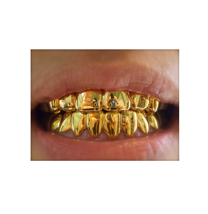 Pin By Cynthialynn Ward On Drippin With Dopeness Gold Grill Gold Teeth Gold Hands