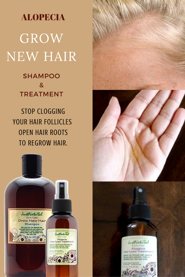 Fast absorbed for quick results. Use if you have Alopecia