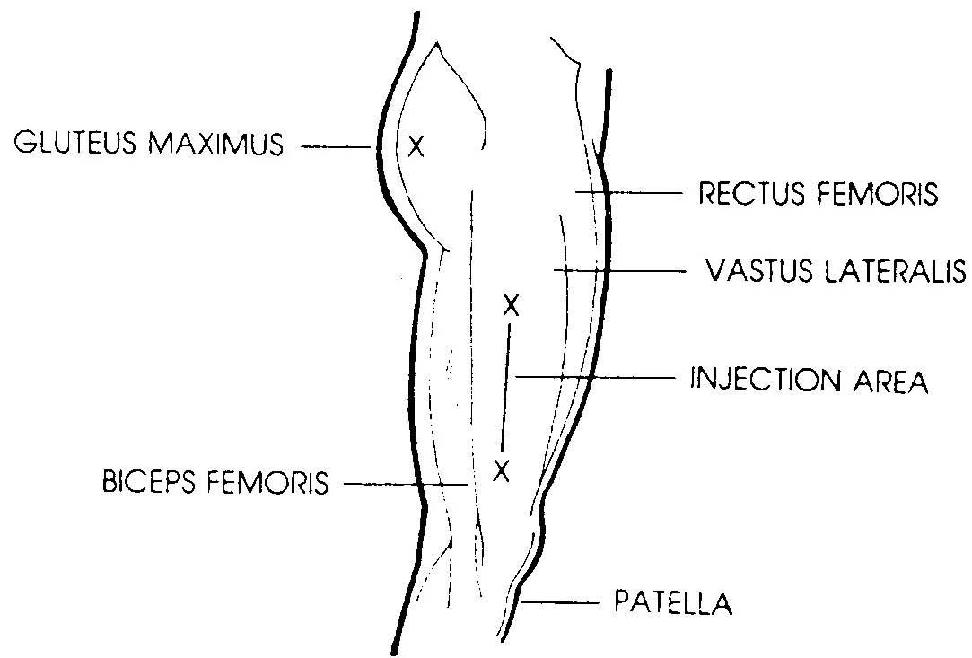 medium resolution of b12 injection sites google search