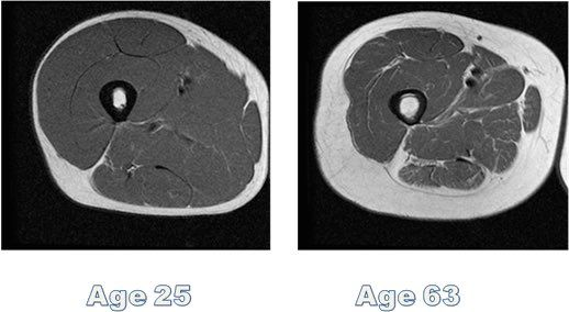 """FitGreyStrong on Twitter: """"Disuse independently accelerates sarcopenia-induced fast-twitch fibre atrophy https://t.co/MQsdNDHSu0 #ageing https://t.co/cAu6DzCqHy"""""""
